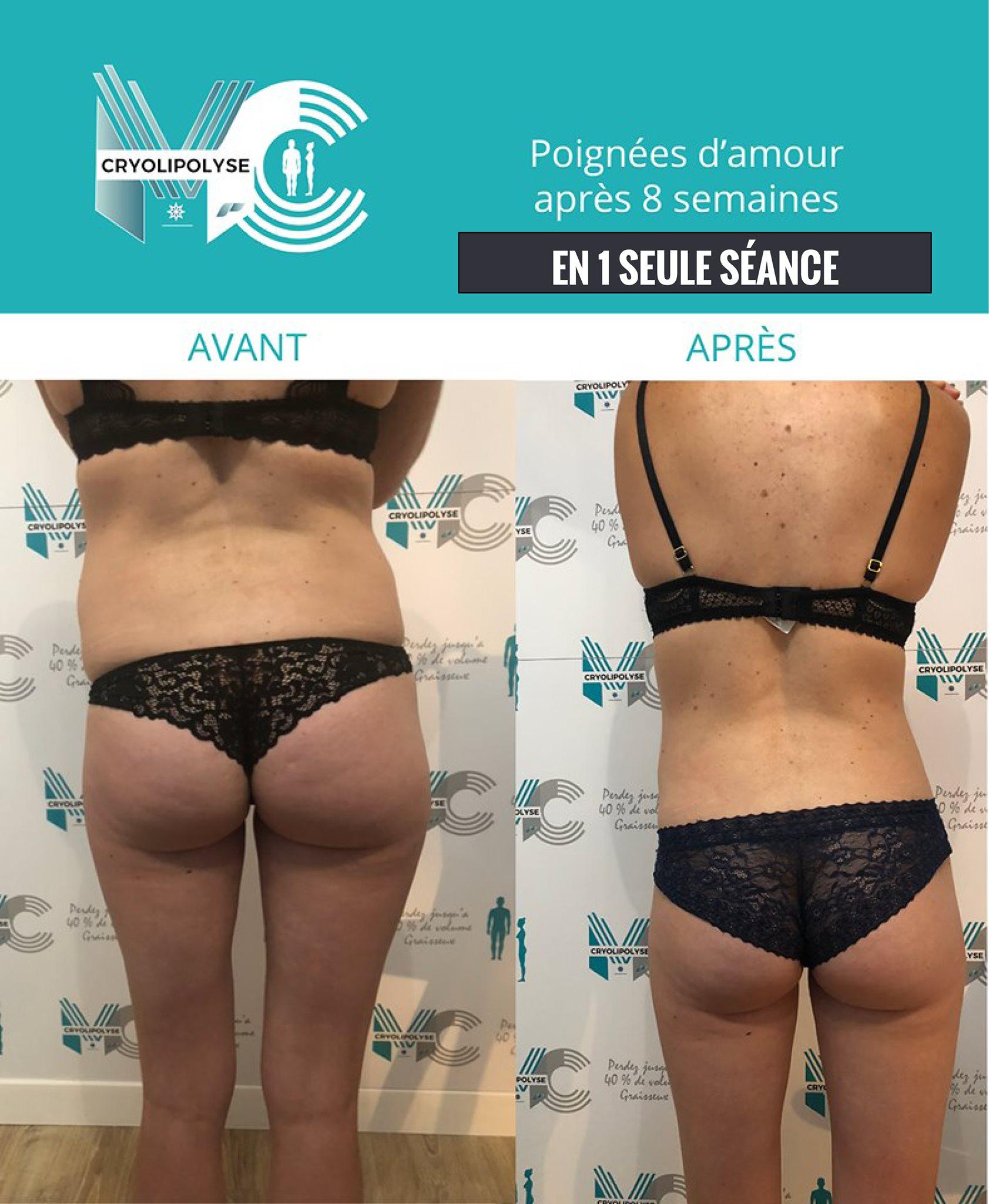 La révolution minceur par le froid dans votre centre MC Cryolipolyse d'Aix-en-Provence : résultat déjà visible en 1 seule séance !